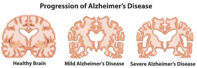 老人認知障礙 阿爾茨海默氏症